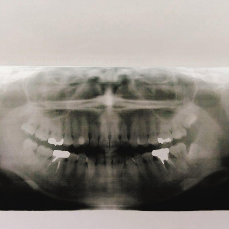【牙套】牙根斷掉的一小步,是我牙套人生的一大步。